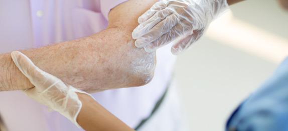 TENA starostlivosť o pokožku a jej zdravie